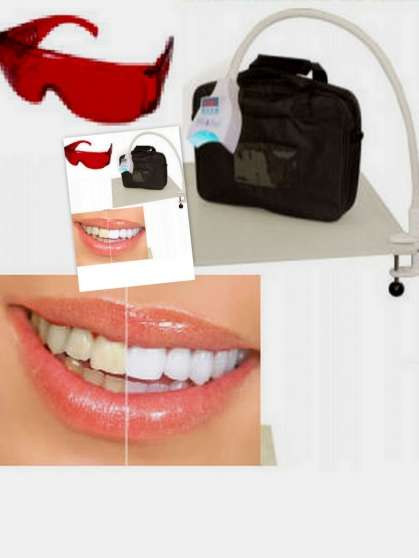 Formation Blanchiment de dents LED